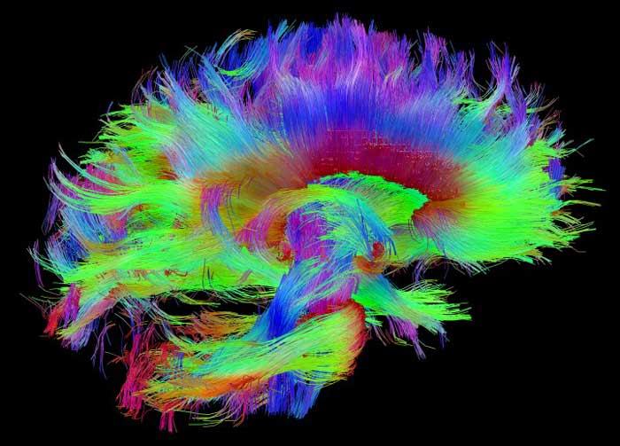 brain in meditation